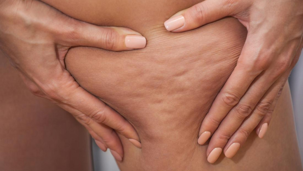 Το δέρμα χαλαρώνει, αποκτά έντονη όψη φλοιού πορτοκαλιού και η λιπόλυση επιβραδύνεται.