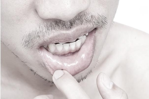 Μερικοί άνθρωποι εκδηλώνουν στοματικά έλκη όταν εκτίθενται στον ιό του έρπη.